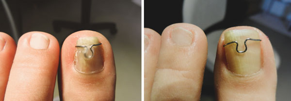 before and after shot of toe nails